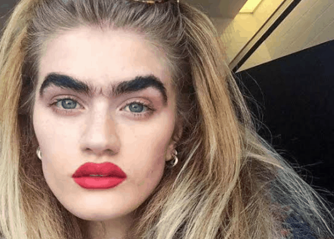 Thick unibrow